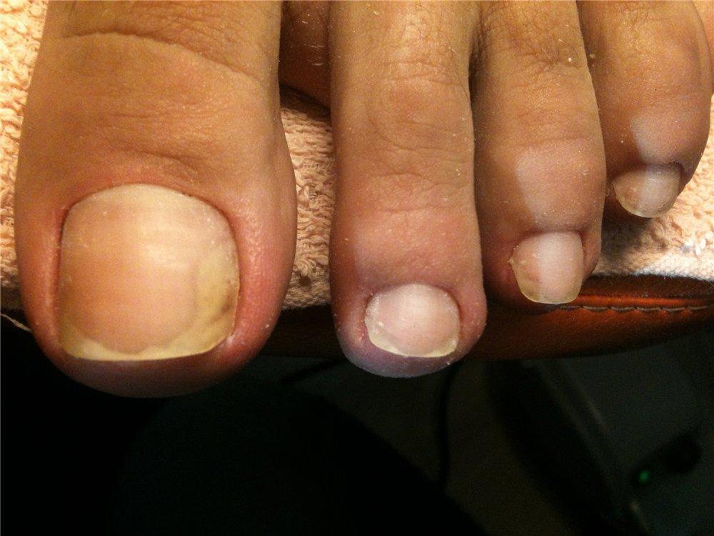 грибок на ногтях ног лечение народными средствами
