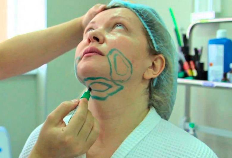 брыли на лице как избавиться