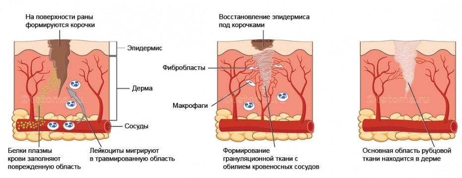 лечение коллоидных рубцов