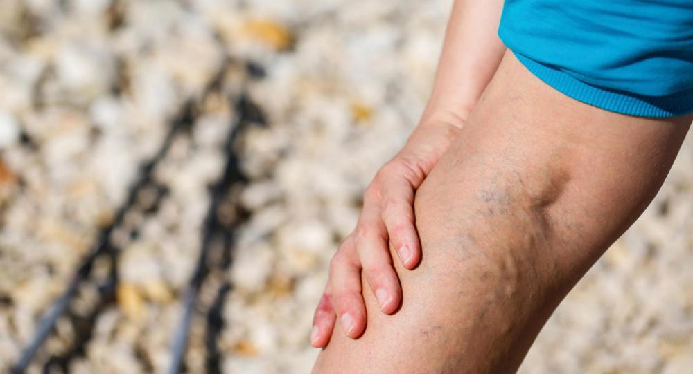 мазь от варикоза вен на ногах