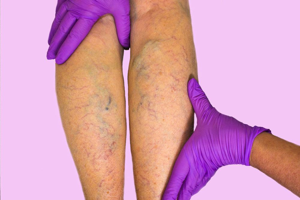 Варикоз нижних конечностей: лечение и профилактика - Здоровый образ ...