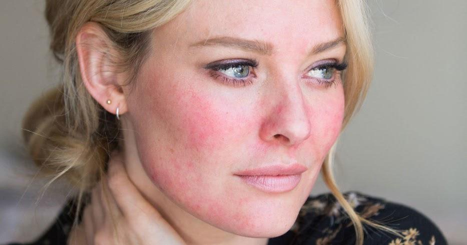 розацеа на лице симптомы