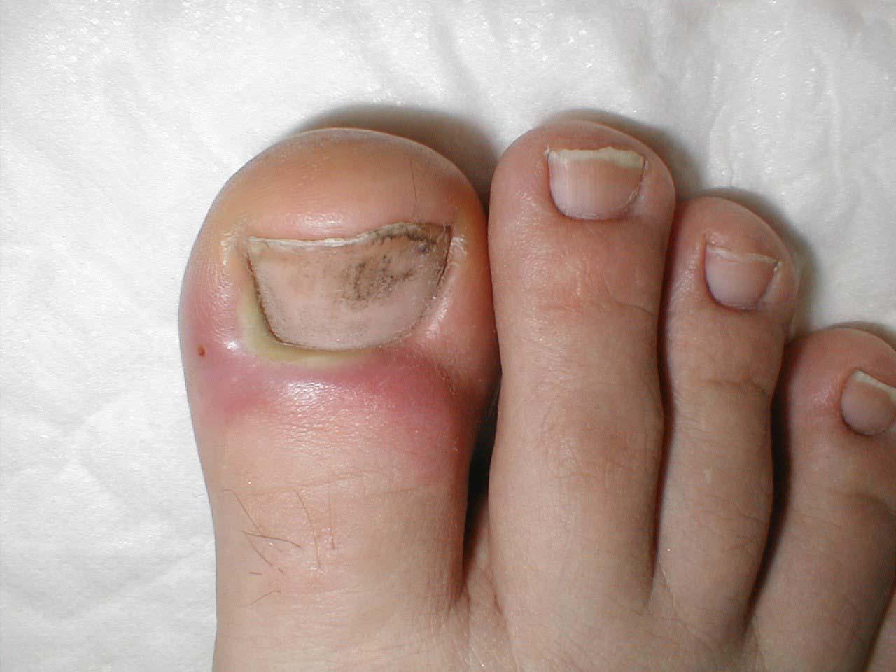 недорогое и эффективное средство от грибка ногтей