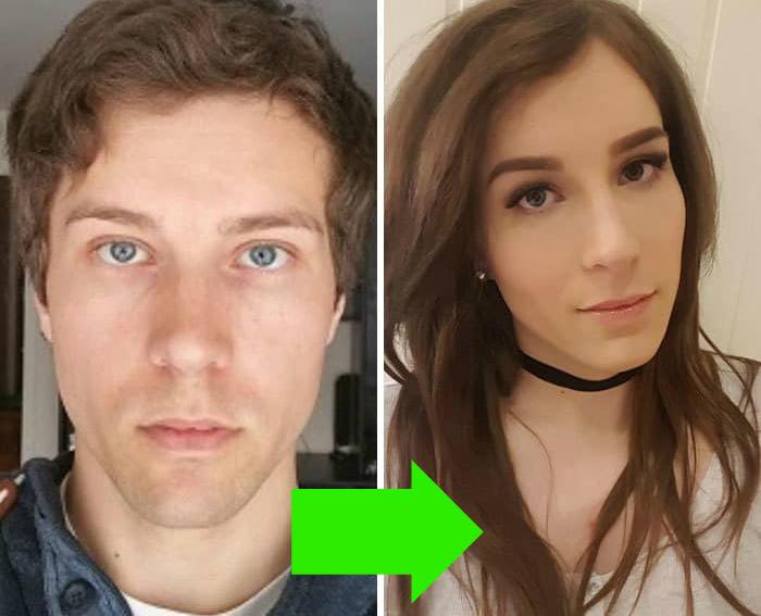 операция по изменению пола