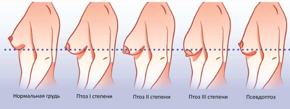 тубулярная форма молочных желез