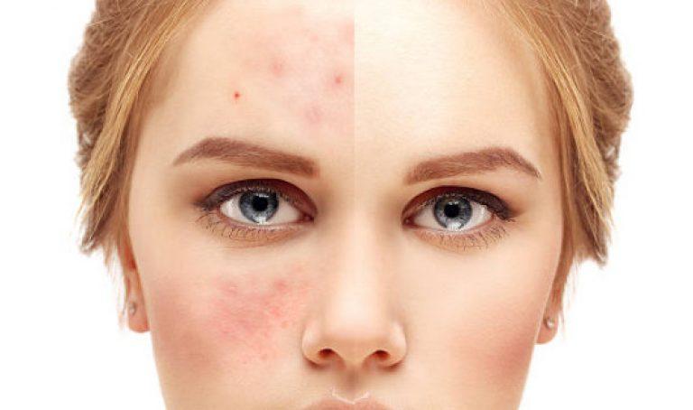 лечение угрей на лице у женщин