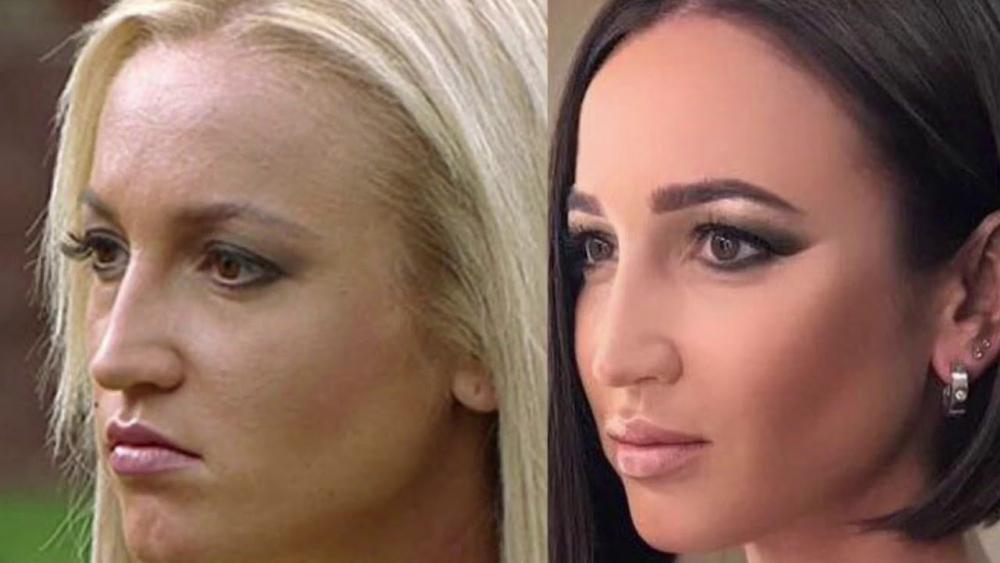 Известный косметолог рассказала о многочисленных операциях Ольги ...
