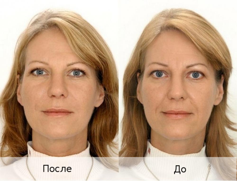 биоармирование лица что это такое (главный ключ)
