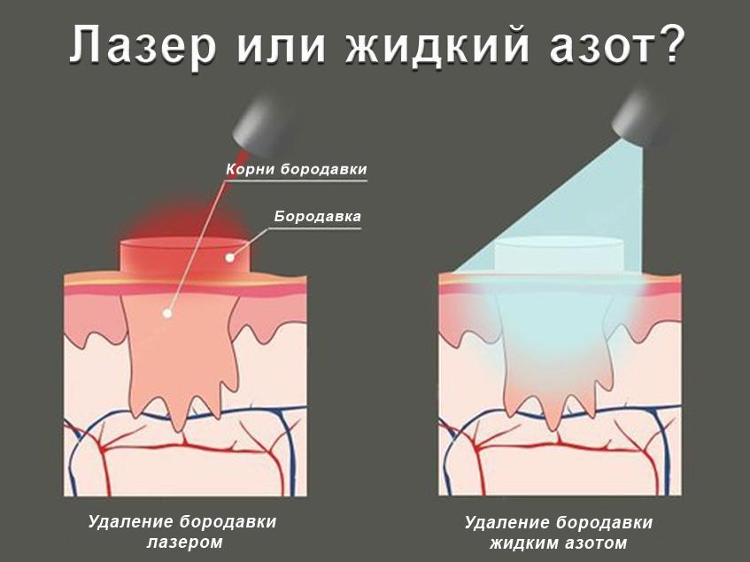 удаление бородавок жидким азотом (главный ключ)