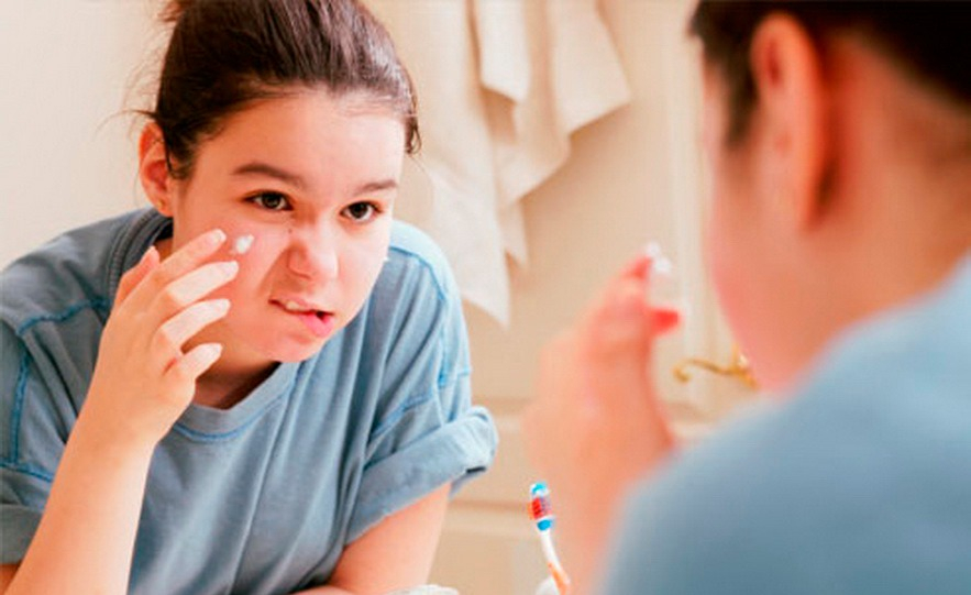 Как избавиться от прыщей с помощью зубной пасты