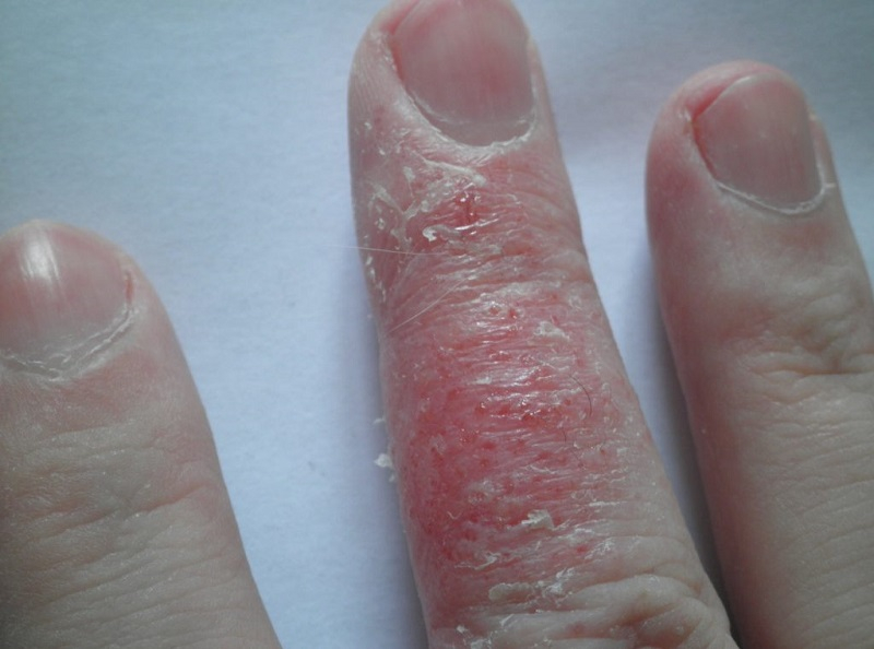 allergiya-na-gel-lak-6