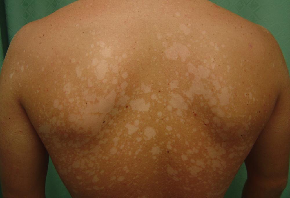 белые пятна на спине после загара лечение