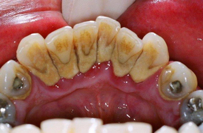 kak-izbavitsya-ot-zubnogo-kamnya