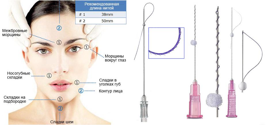 мезонити для подтяжки лица (главный ключ)