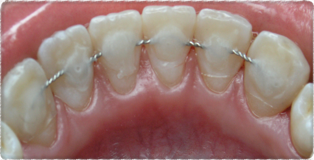 parodontoz-chem-lechit