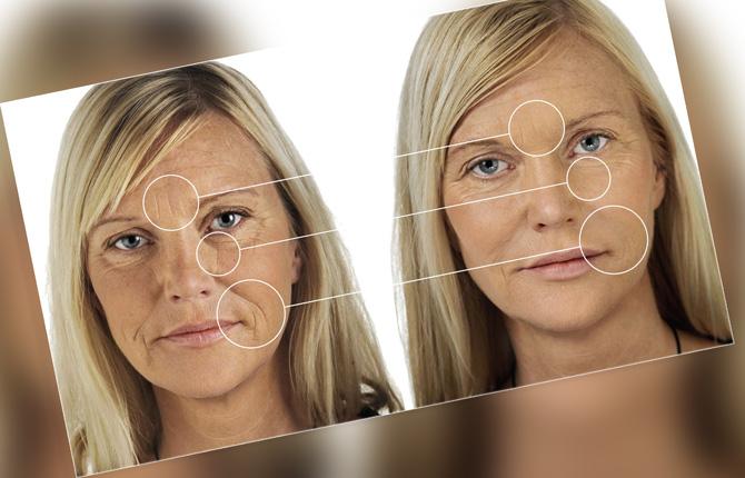 Лицо после липофилинга