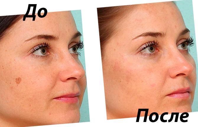 Фото до и после фототерапии