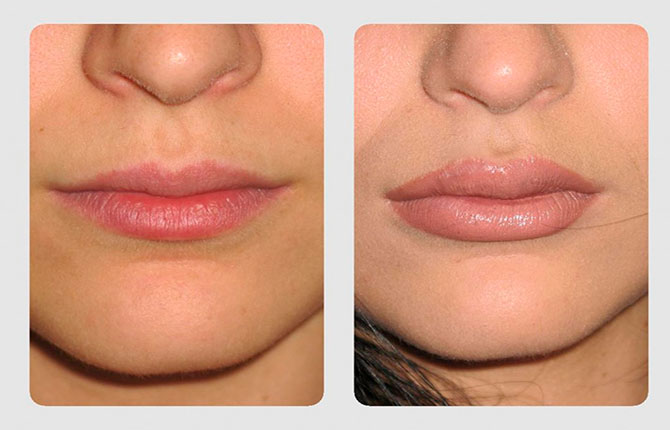 До и после процедуры липофилинга