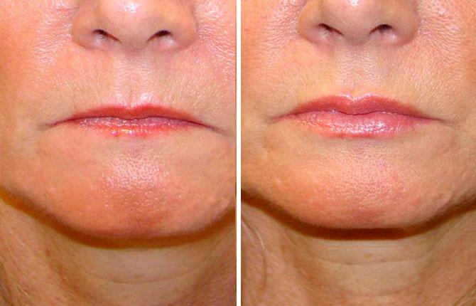После липофилинга губ