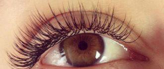 Болит глаз после наращивания ресниц