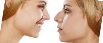 Горбинка на носу