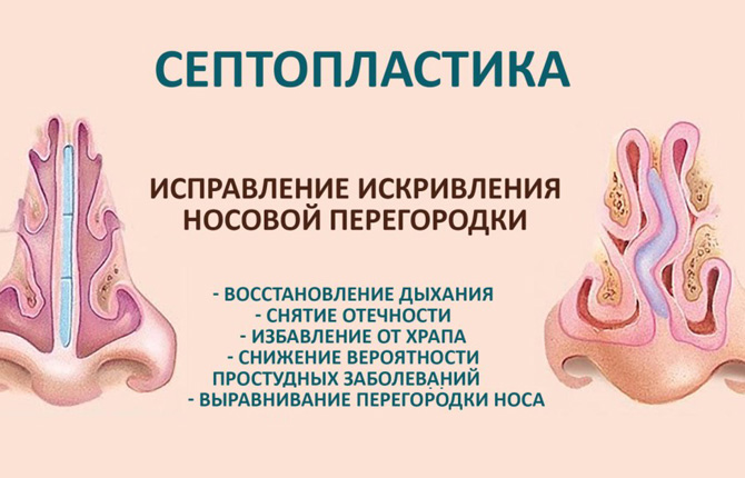 Септопластика