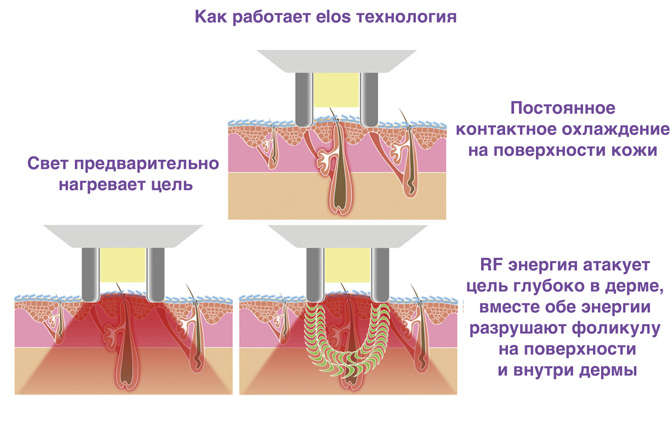 Как работает elos эпиляция
