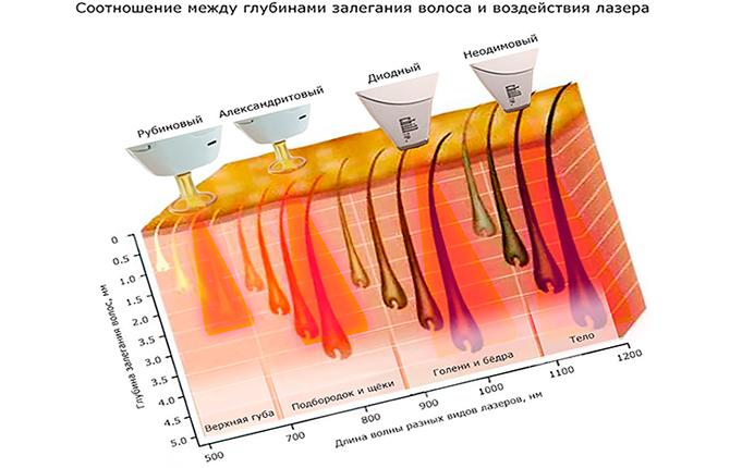 Глубины залегания волоса и воздействие разных видов лазерной эпиляции