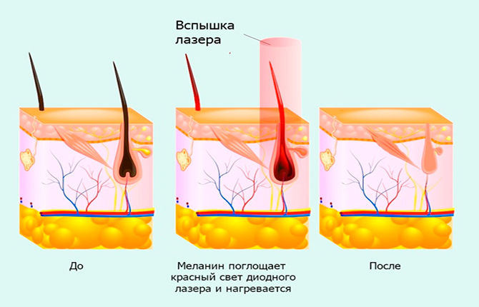 Воздействие лазера на волоски при эпиляции