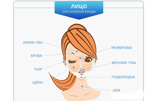 Зоны лица для лазерной эпиляции