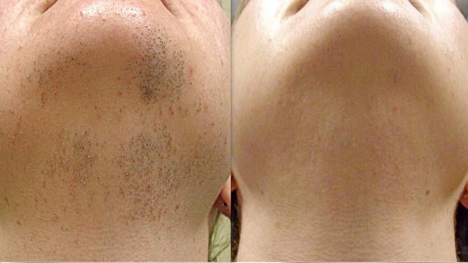 Фото до и после лазерной эпиляции лица