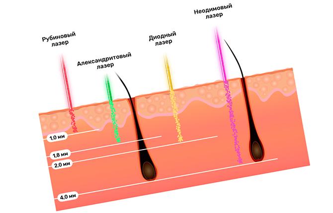 Длина волос под разные методы эпиляции