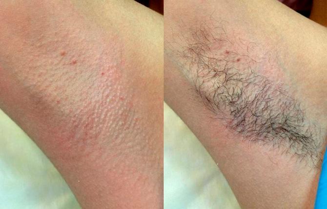 Фото до и после процедуры эпиляции воском подмышек