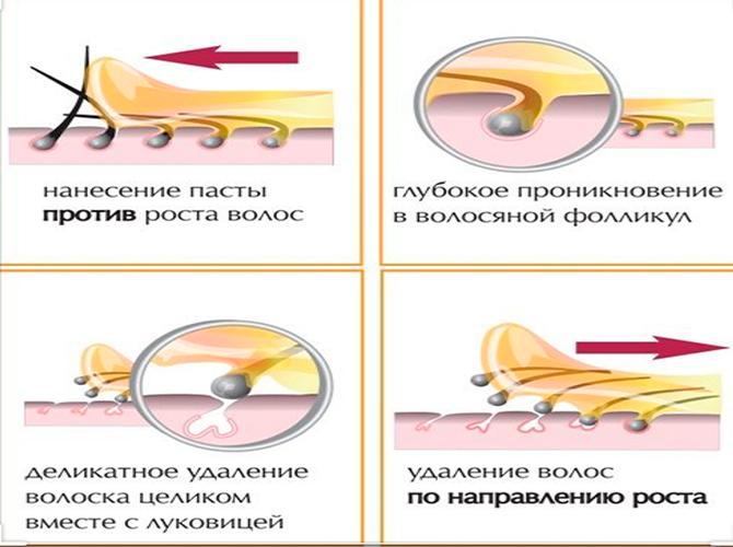 Как проводится мужской шугаринг